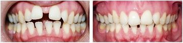 Before and after 3 (Clear Aligner)