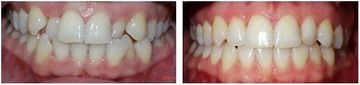 Before and after 2 (Clear Aligner)