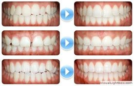 Before and after 2 (Orthodontic Clinic)